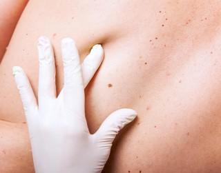 Kā sevi pasargāt no melanomas